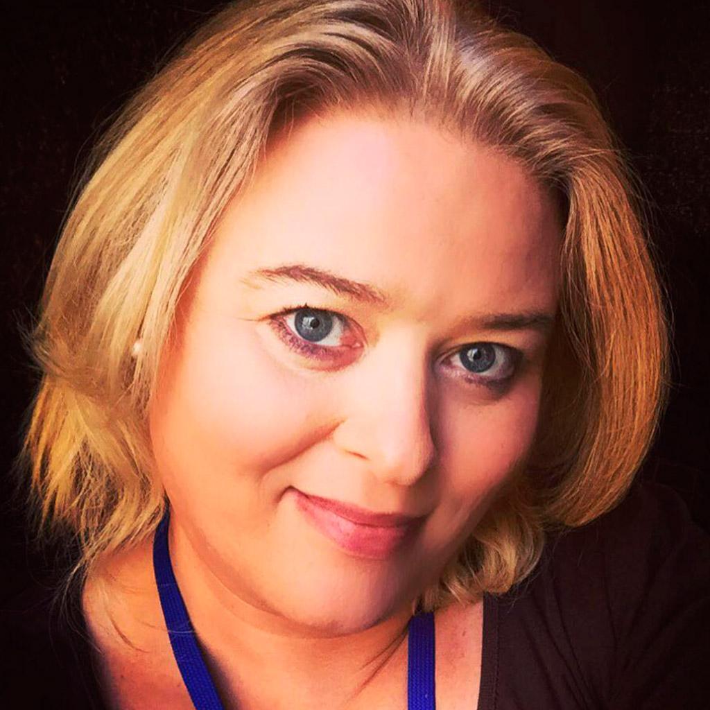 Megan, cirugía de feminización facial