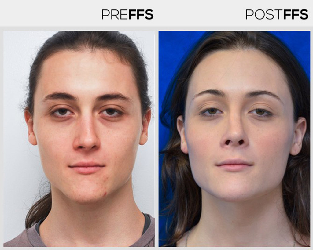 Simulated photos of facial feminization surgery