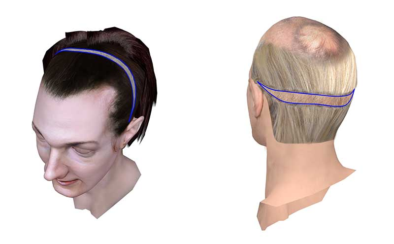 Surgically lowering the hairline (scalp advancement)