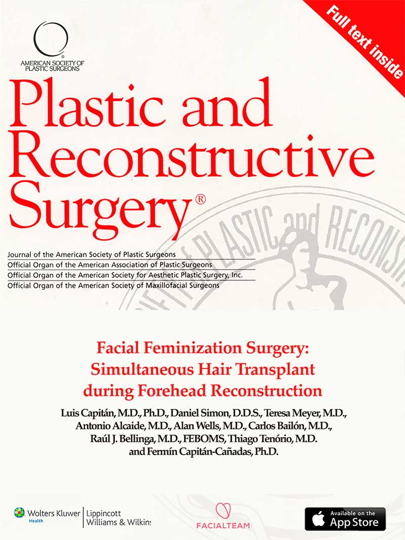 Simultaneous Hair Transplant during Forehead Reconstruction