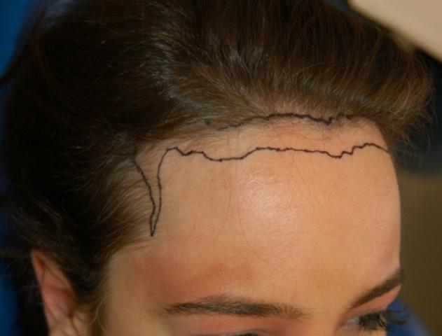Seeking perfection in hairline feminization