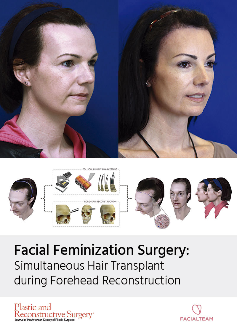 Hairline Feminization: Who is a candidate & Ideal FFS