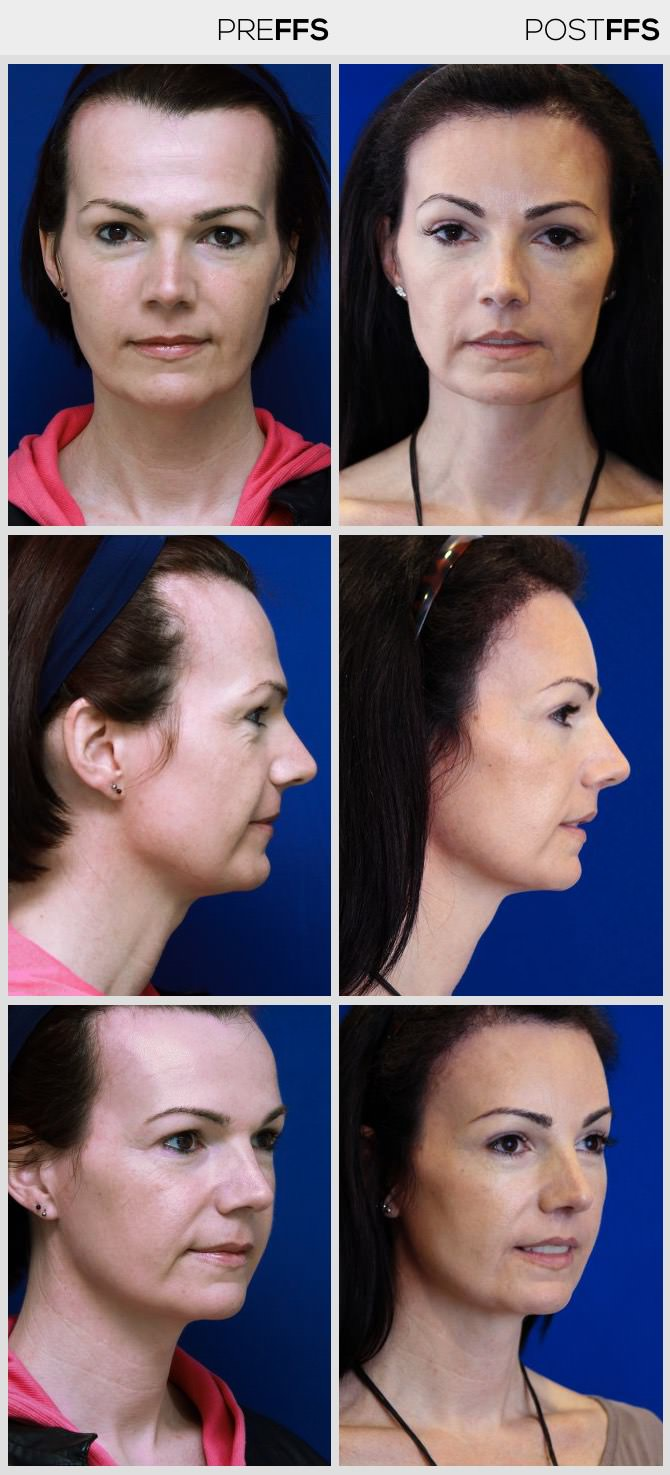 Feminine Hairline with simultaneous hair transplants ( SHT )
