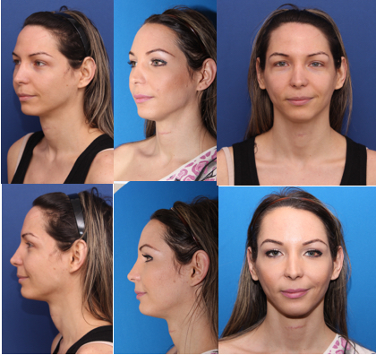 FFS Surgery Photos: Tips for taking the best pics for later comparisons