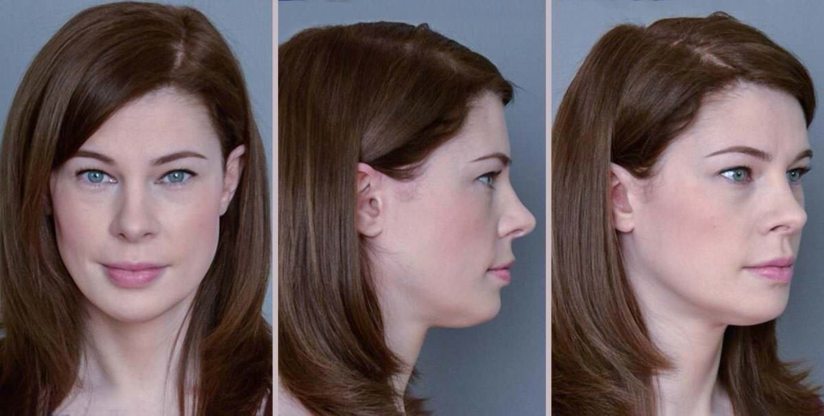 patient after forehead reduction
