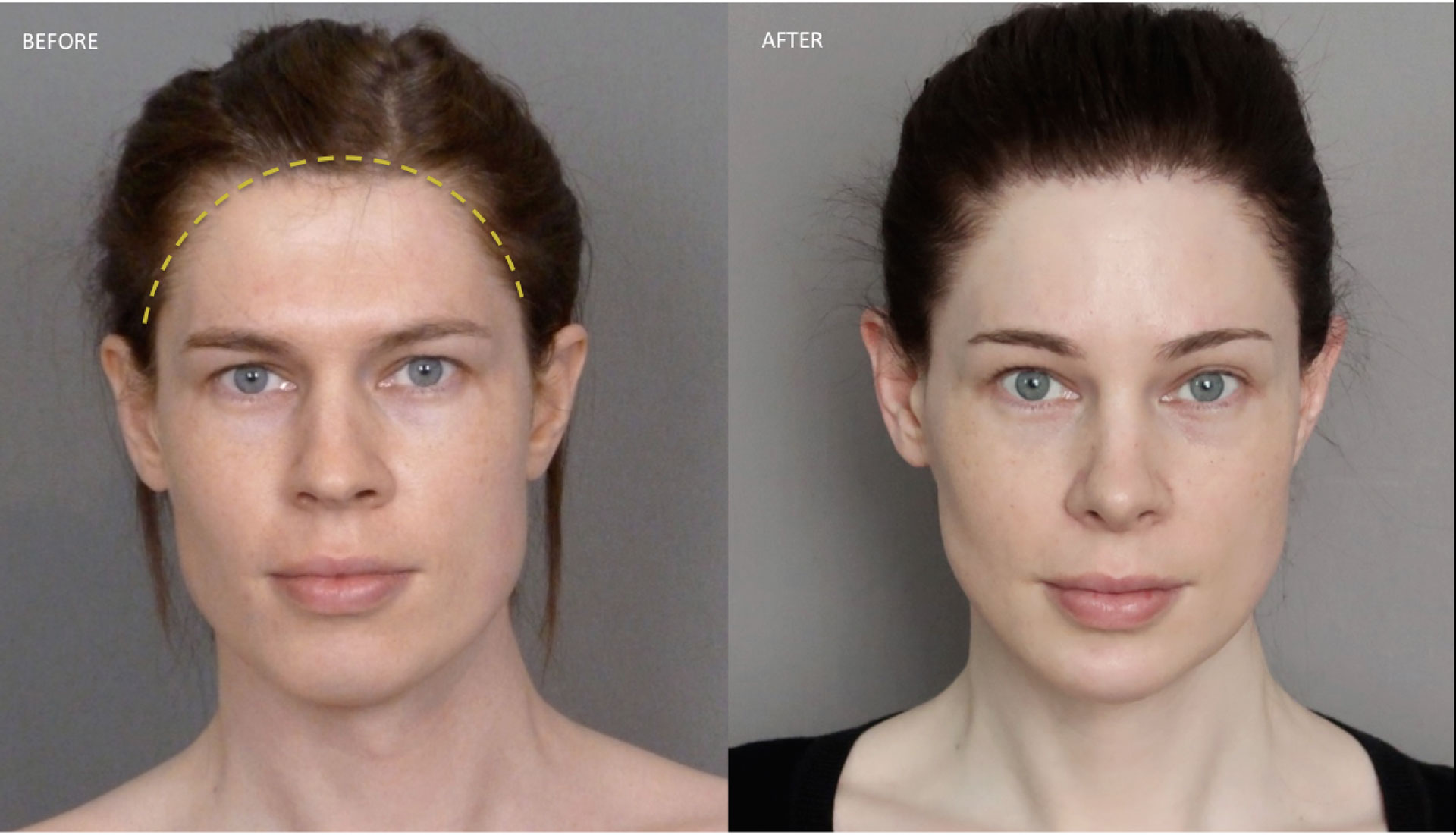Image result for hairline feminization thailand