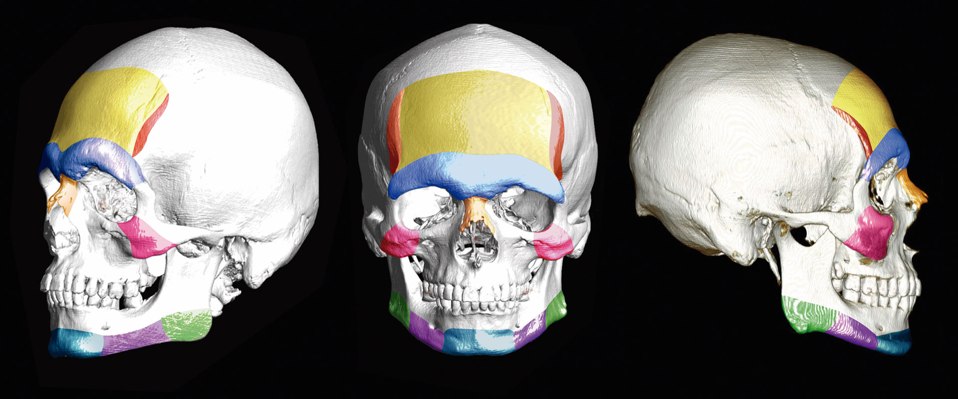 FACIALTEAM | 3D CT Scan