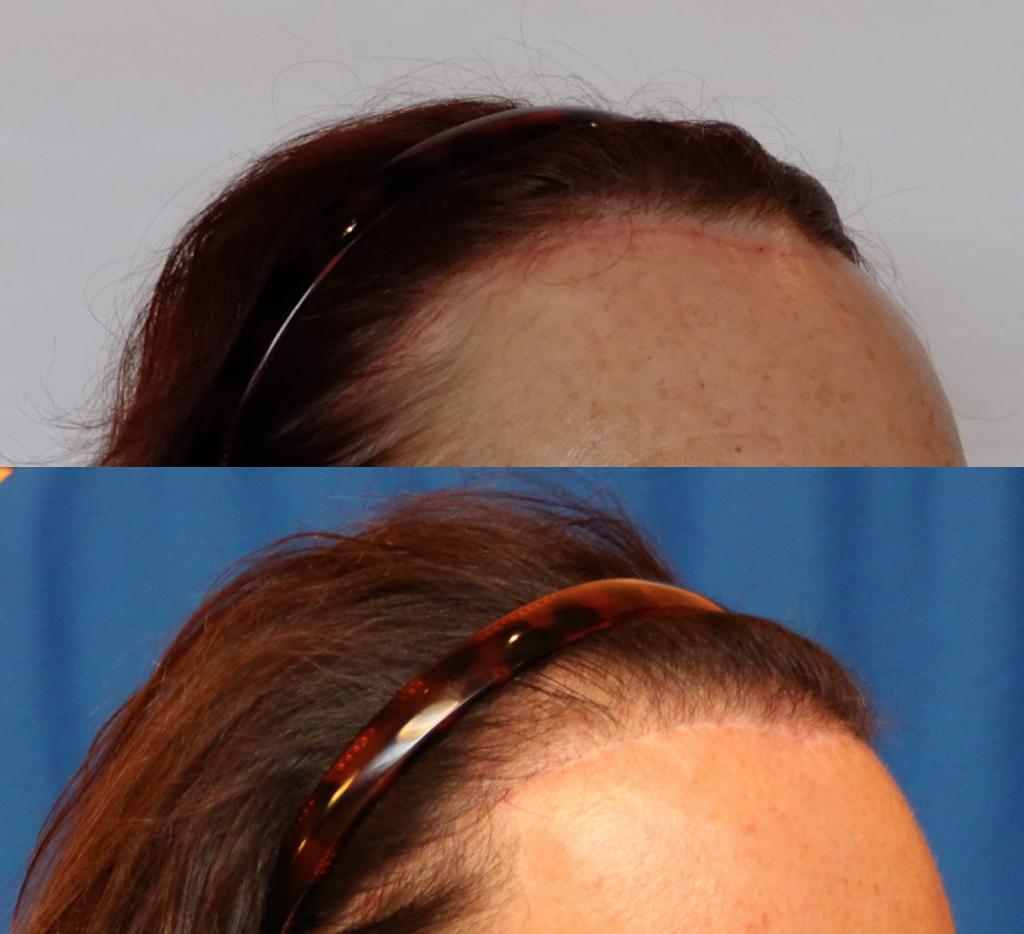 feminine hairline