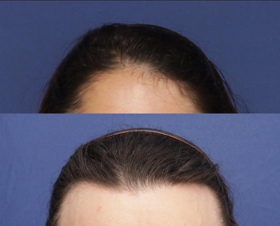 Options for a feminine hairline