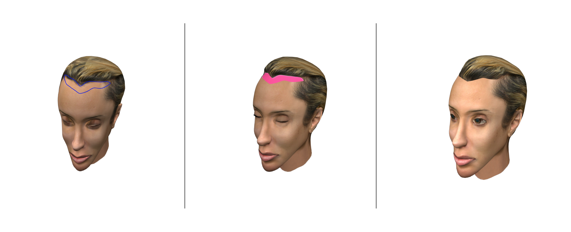 Options For A Feminine Hairline In Facial Gender Surgery Facialteam