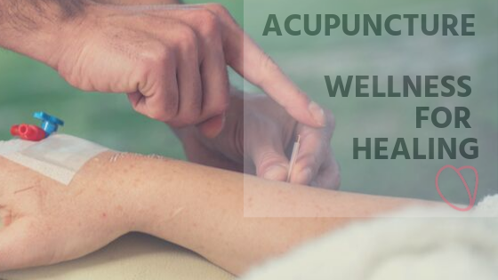 acupuncture for wellness