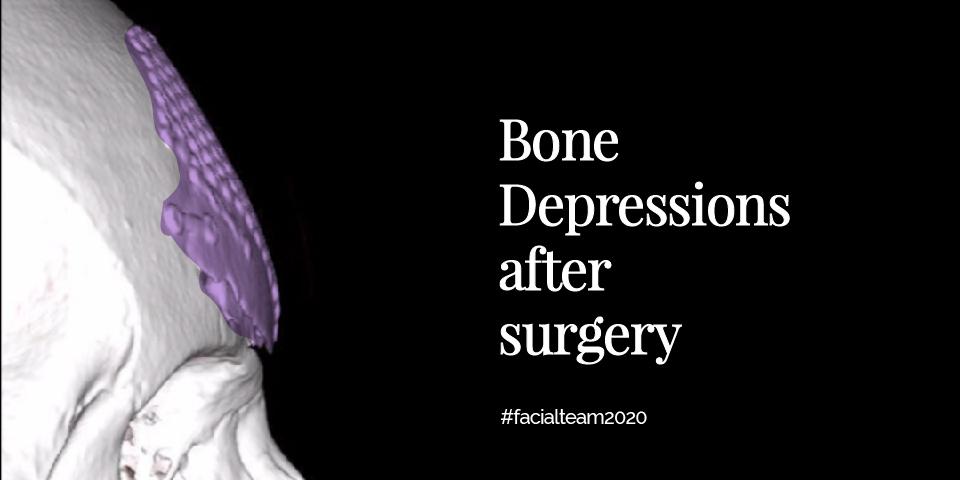 Types of bone irregularities after FFS Surgery