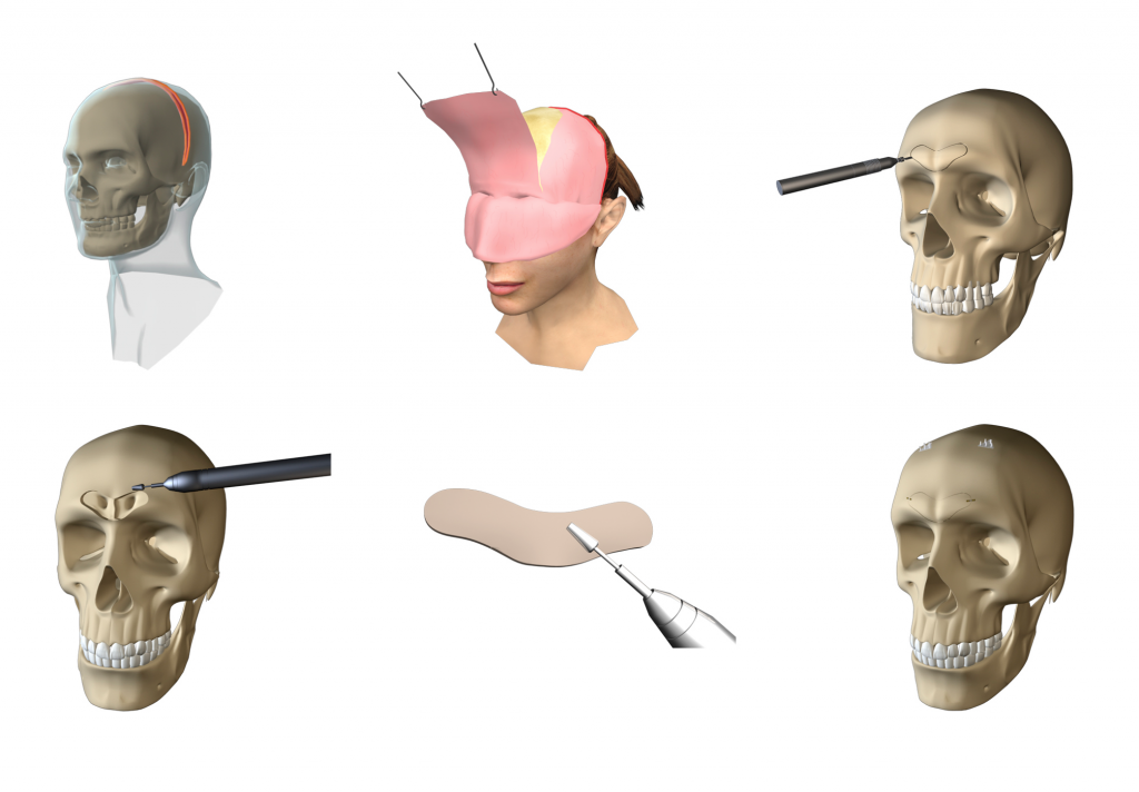 FFS Surgery - Depressions, irregularities and bone asymmetries | Fig.1