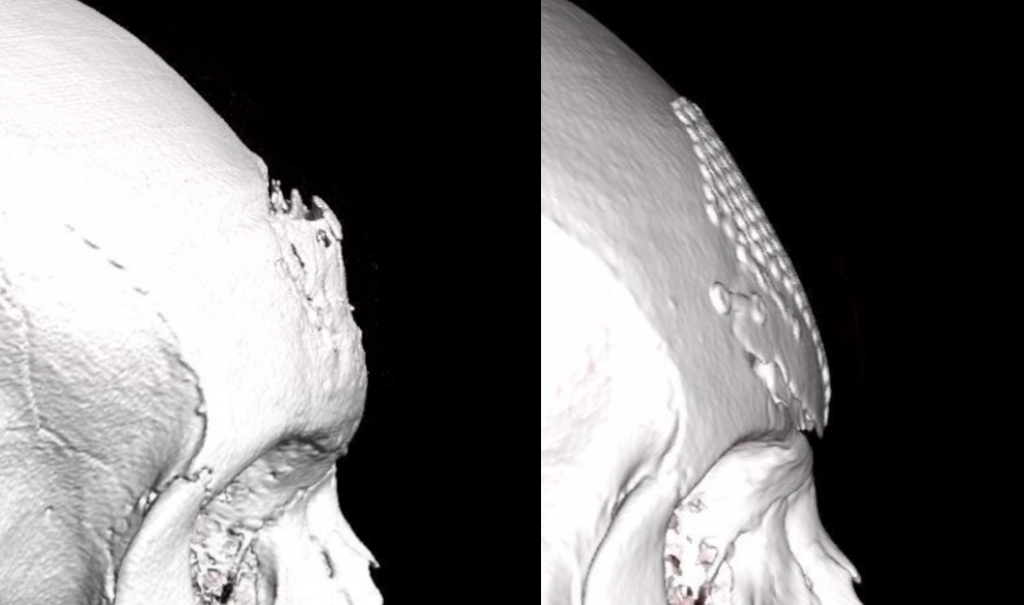FFS Surgery - Depressions, irregularities and bone asymmetries | Fig.3
