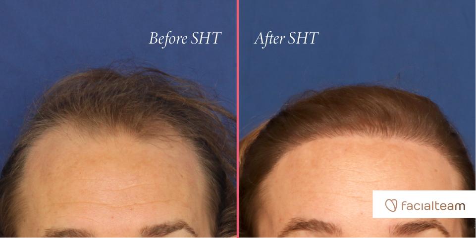 Simultaneous Hair Transplant VS Hairline Lowering