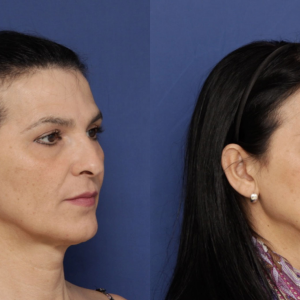 What Makes for a Feminine Hairline? A Guide for FFS Patients