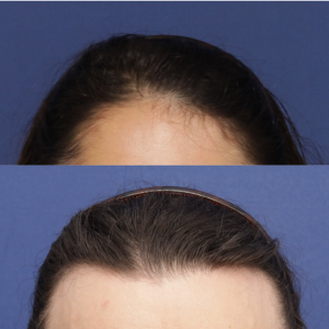 Options for a feminine hairline